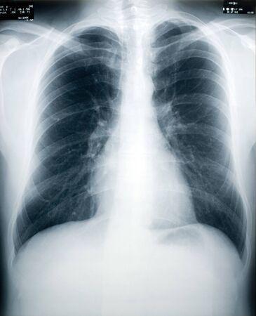 polmone: Un dispositivo a raggi X di un maschio sano petto e polmoni (identit� numeri e le date sono il obfuscated) Archivio Fotografico