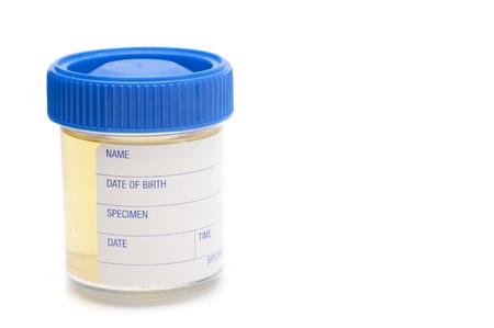 specimen testing: frasco de muestra que contiene una muestra de orina de prueba de patolog�a