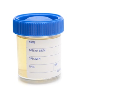 pathology test sample jar containing a urine specimen