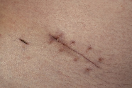 Scar of a appendix sugery photo