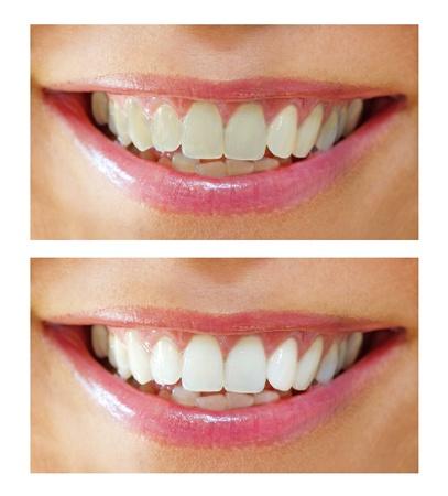 미백 - 여자 치아와 미소, 전후 처리를 표백, 폐쇄
