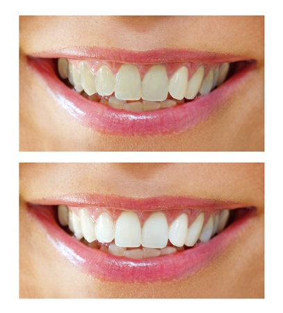 dentition: whitening - bleaching treatment ,before and after ,woman teeth and smile, close up