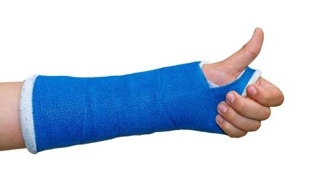 brazo roto: Brazo roto - el pulgar arriba Foto de archivo