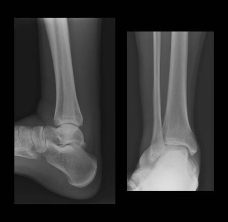 Two ankle radiographs showing inflammation and a little fracture. photo