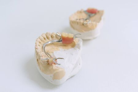 Dental prosthetics, implants. Gypsum model on the table at the dentist.
