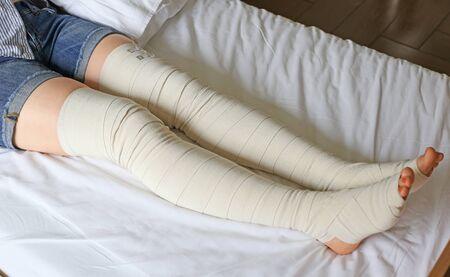Preventive postoperative elastic leg bandage to prevent varicose veins