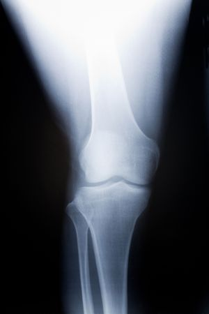 knee x-ray photo for background photo