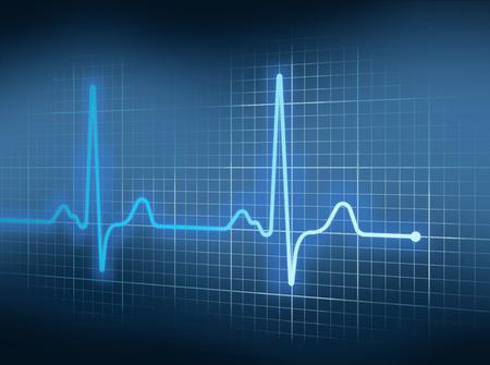 블루 심전도 심장 그래프에 펄스를 이길.