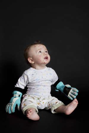 varicela: niño con varicela en busca de la medicina invisible Foto de archivo