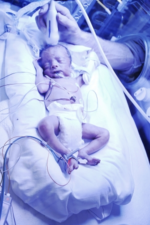 neonatal: a little premature baby in the incubator being checked by a doctor