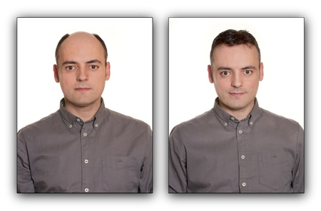 calvicie: Hombre calvo con una peluca, antes y después Concept
