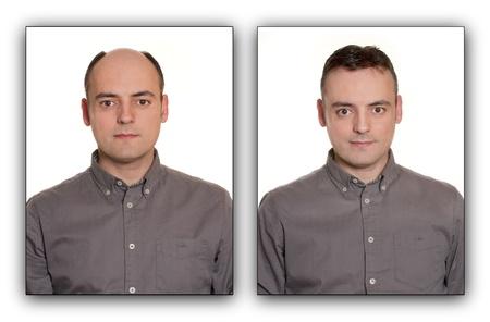 homme chauve: Homme chauve avec une perruque, avant et apr�s Concept