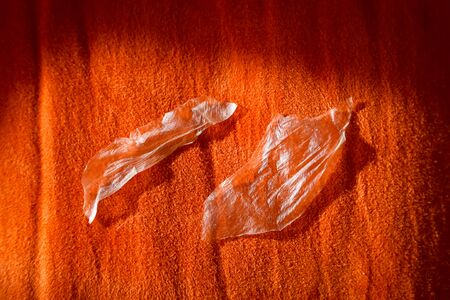 Detail of woman peeled burned skin from the sun from the arm on the orange textile background.