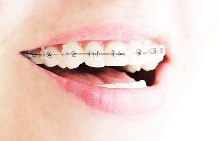 Teeth with braces, beautiful female smile, dental care concept Stock Photo - 8888719