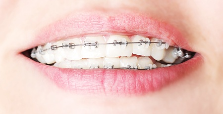 Teeth with braces, beautiful female smile, dental care concept photo