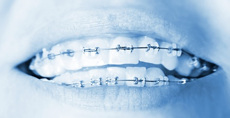 Teeth with braces, beautiful female smile, dental care concept Stock Photo - 9762989
