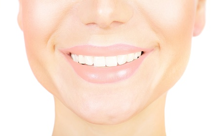 veneer: Perfect smile with white healthy teeth, closeup on beautiful female face, dental care concept