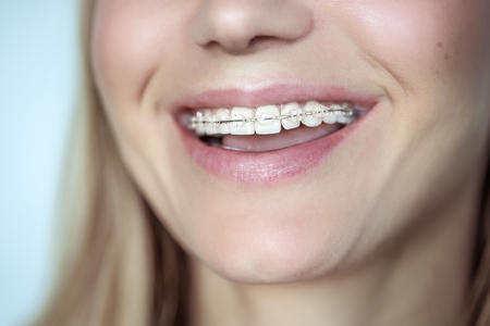 Braces, treatment for a crooked teeth, closeup photo of a beautiful smile of a young woman with white clean teeth, aesthetic dentistry and dental care concept Stock Photo