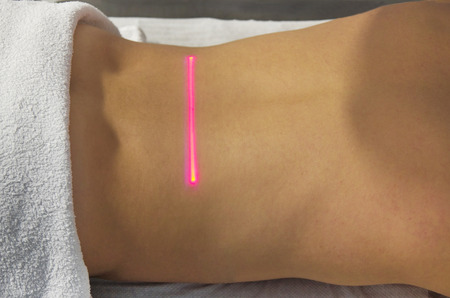 Laser Therapy on a back of an young girl photo