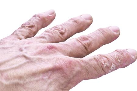 Psoriasis, Hauterkrankung an den Gelenken des Körpers Standard-Bild - 82817690