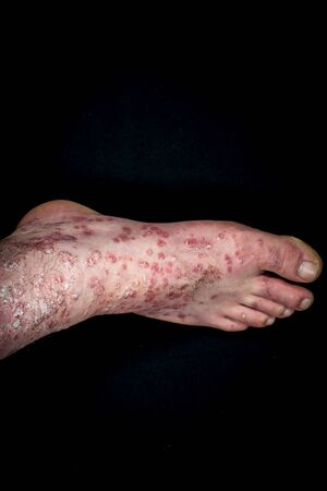 Psoriasis (eczema) on foot isolated on black background