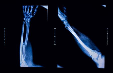 raggio: Immagine a raggi X mostrano frattura dell'osso del raggio