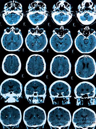eye socket: MRI scan of the human brain