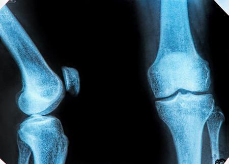 knee cap: X-Ray image of the human knee Stock Photo