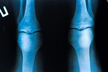 X-Ray image of the human knee Stock Photo