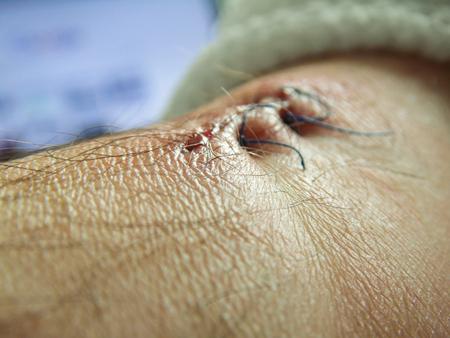 stitched leg wound. macro two seams Stock Photo - 99527927