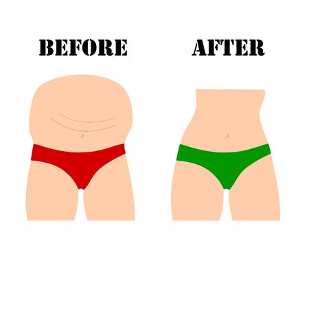 fat and slim woman body transformation. Slimming vector. woman body with pants. Archivio Fotografico - 132014392
