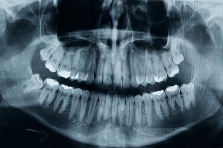 Teeth xray photo