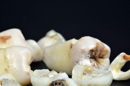 A collection of infected teeth with karies pictured on black photo