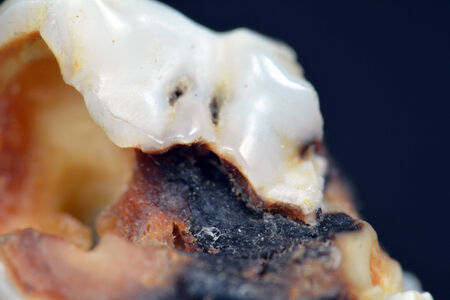 dental calculus: A tooth infected with caries pictured on black.