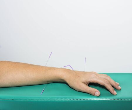 pinched: Acupuncture needle, pinched through the skin for alternative therapy.