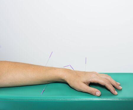 acupuntura china: Aguja de acupuntura, pellizcado trav�s de la piel para la terapia alternativa.