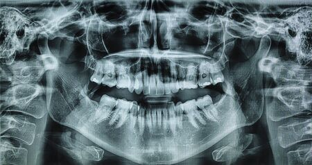 X ray of a womans mouth in 360 perspective.