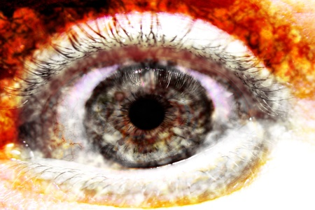 An alcohol-damaged eye with hangover Stock Photo