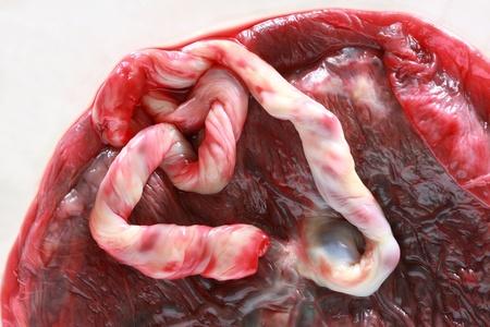 umbilical cord: Fresh human placenta