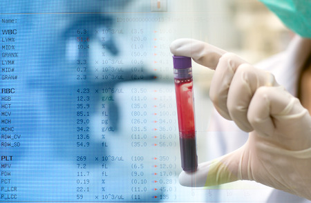 blood inspection and foreground with report