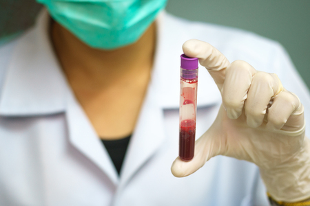 scientist shake blood in tube for health check
