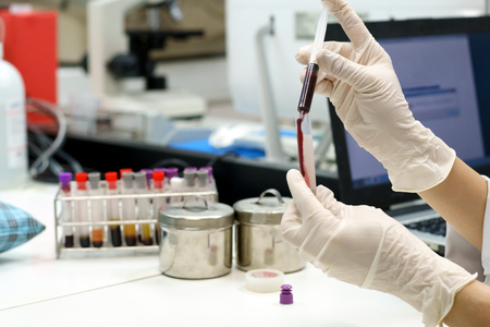 scientist drop blood in tube for health check