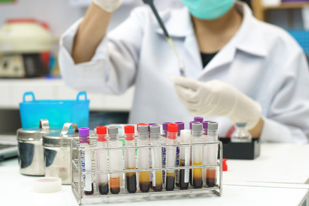 scientist drop chemical for blood inspection of health check