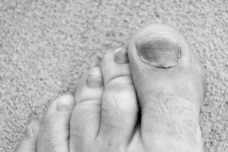 toe injury. bruise and trauma treatment. medical intervention. fracture. uncomfortable shoes. nail fungus. healthy feet. finger hematoma desease. Pedicure podiatry. Treatment of bruise and fracture Stockfoto