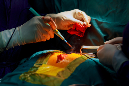 Disposable electrosurgical pencil. Incision on the chest. Cutting the chest during an operation on the heart Stock Photo