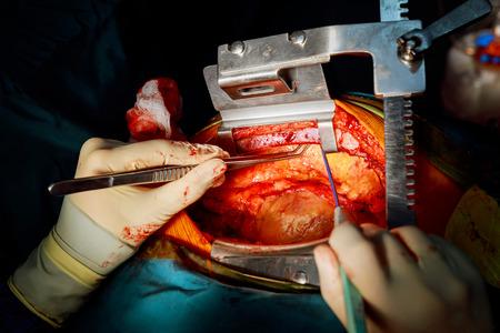 Working with the vein. Coronary artery bypass surgery. Cardiac surgery.
