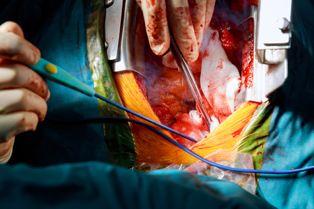 minimally invasive surgical approach with a small incision for heart valve surgery for removing expandable transcatheter aortic valve implantation remove old valve prosthesis with new mechanical valve. Stock Photo