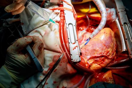 Coronary artery bypass surgery connected to a heart closeup