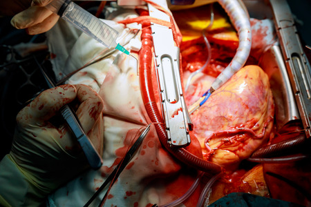 Koronararterien-Überbrückungsoperation angeschlossen an eine Herznahaufnahme Standard-Bild - 97329443