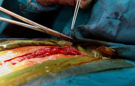 Suturing the after the surgery with surgical tools and tissues close-up Standard-Bild